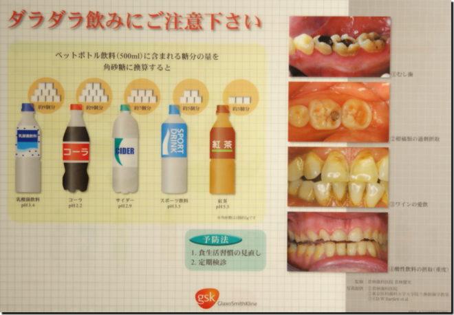 酸蝕歯01